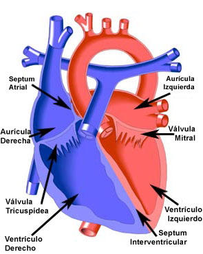 Endocardial Cushion Defect